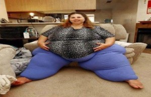 obesity (3)
