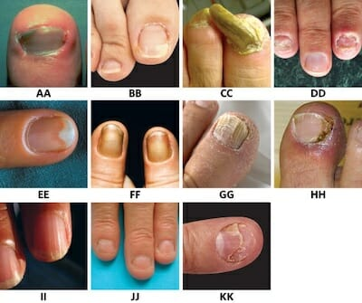 Homoeopathic management of nail disorders   Homeopathy