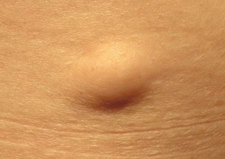 Scope of Homoeopathy in Lipoma | Homeopathy Resource by